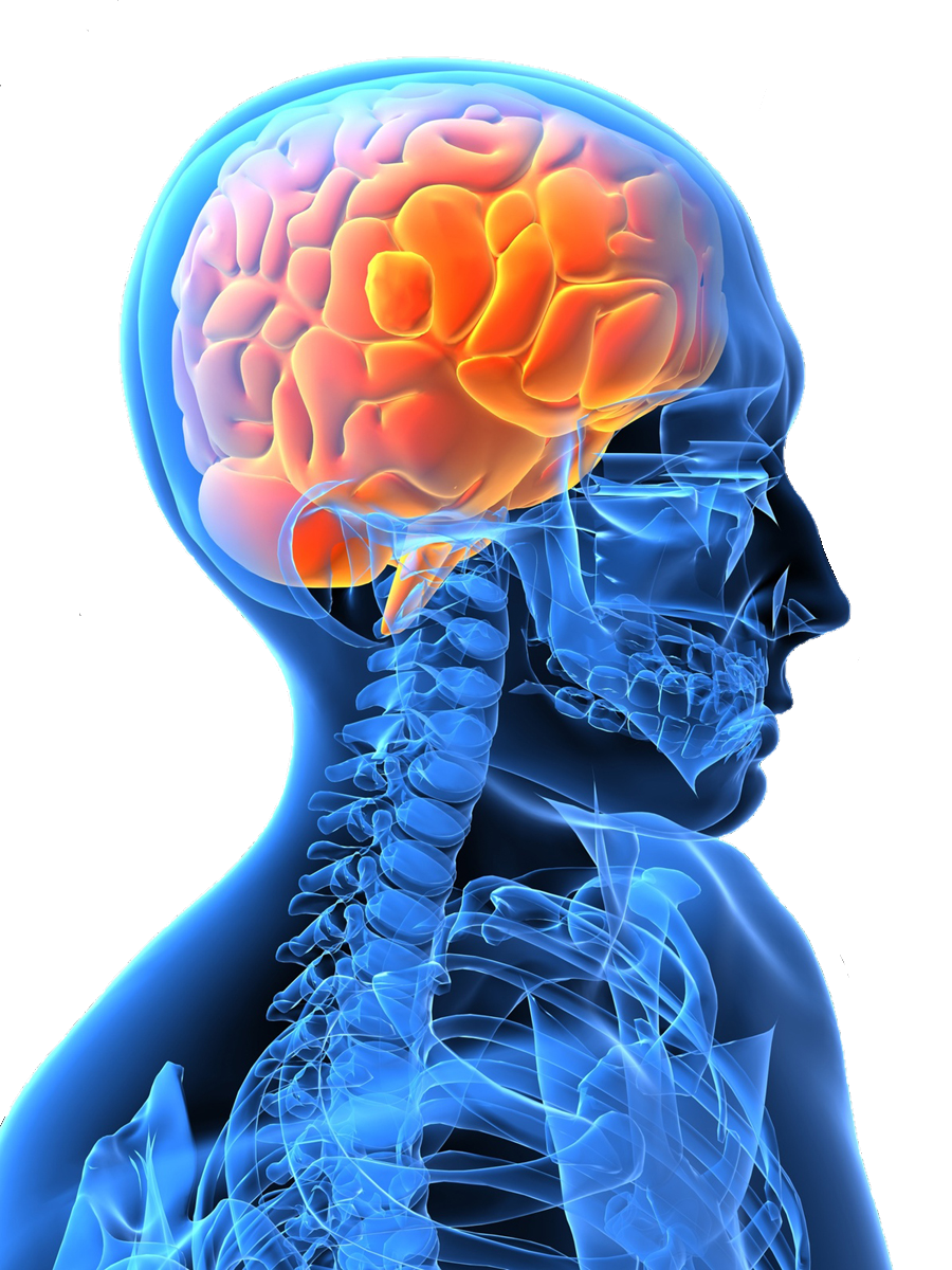 Multiple Sclerosis and Headaches